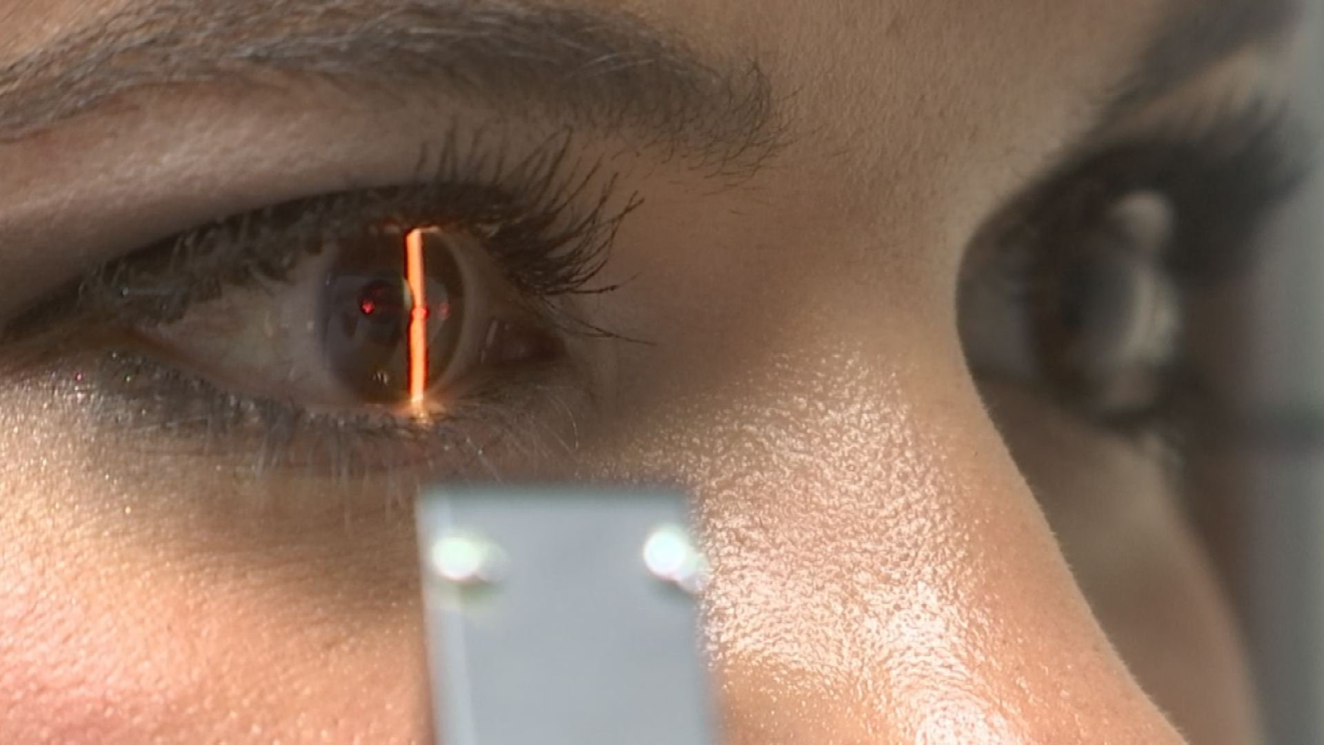Signs of eye damage following eclipse