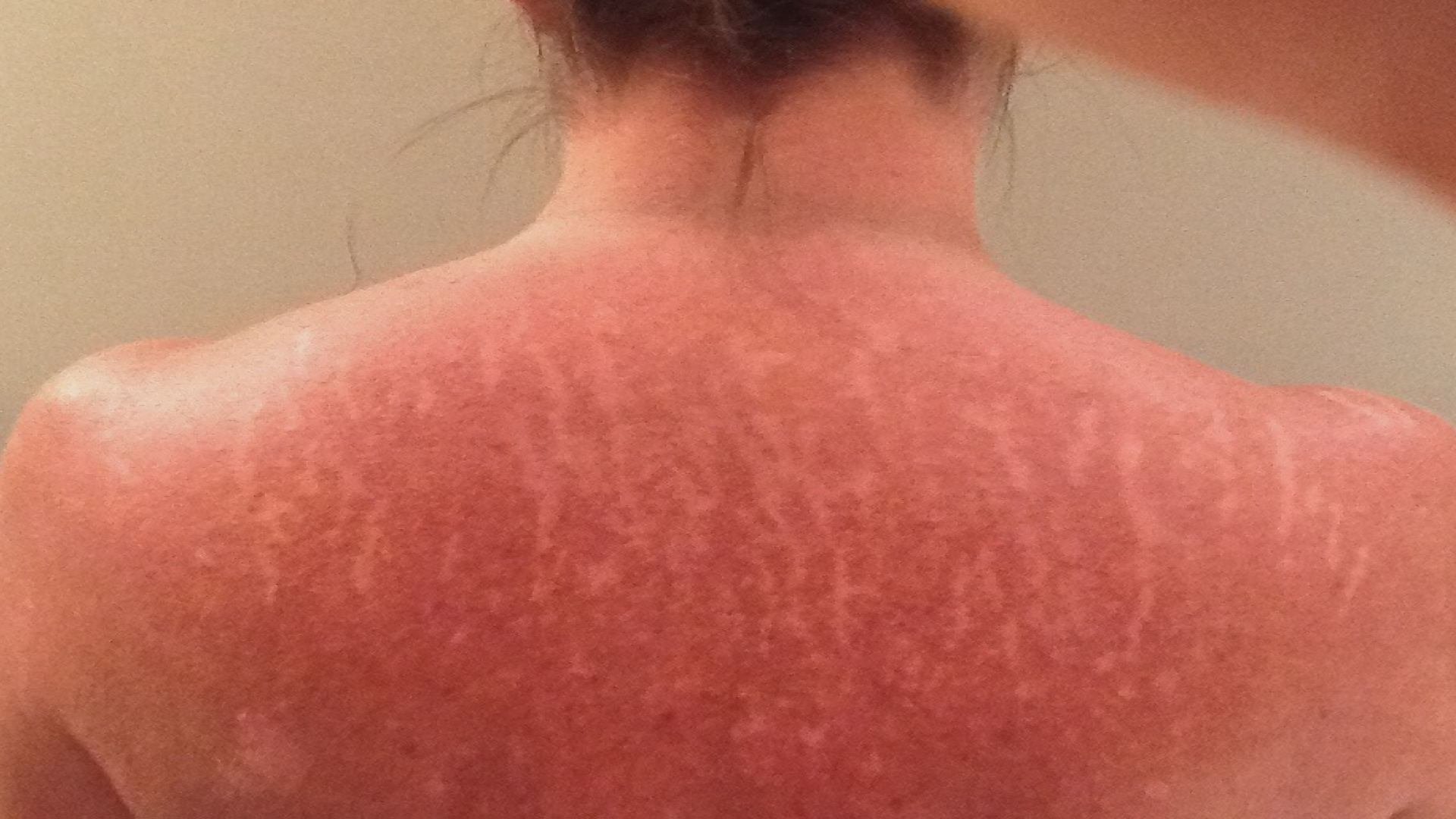 Paula Blades shared this picture of her back, riddled with scars. For years, she dealt with sores that would not heal.