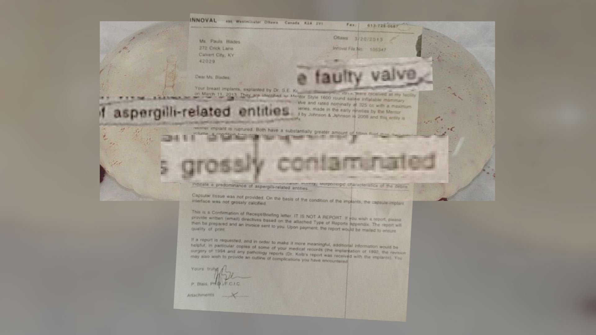 Dr. P. Blais with Innoval Failure Analysis in Ottawa, Canada tested Paula Blades' implants and detected aspergillus mold.